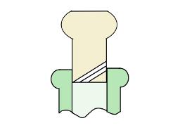 corkvent